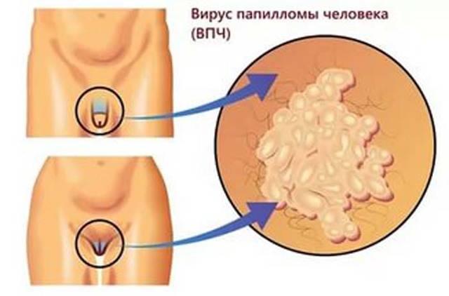 От каких паразитов могут появляются папилломы у человека