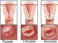 Виды кондилом во влагалище — лечение и способы их удаления в гинекологии