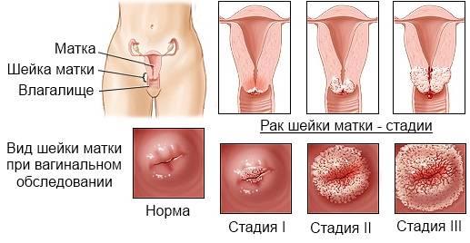 Как проявляется и лечится впч 66 типа у женщин и мужчин?