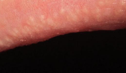 Гранулы фордайса у женщин: фото, причины, лечение