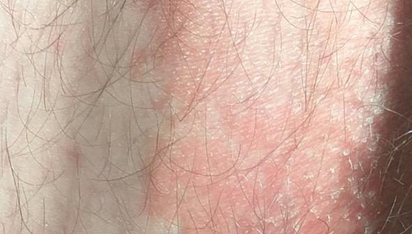 Сыпь на бедрах: фото, возможные болезни, лечение