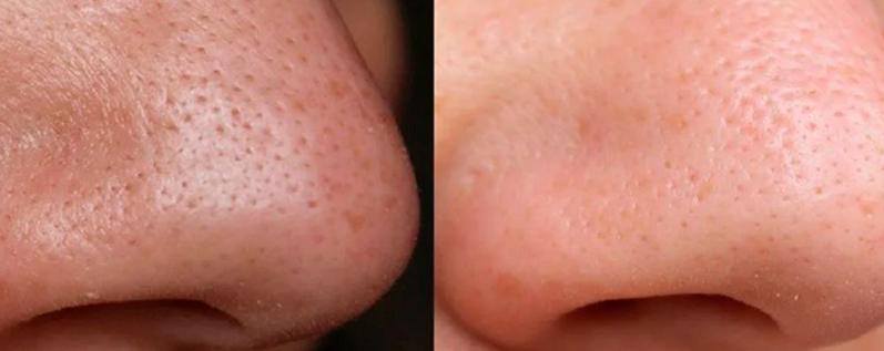 Как избавиться от черных точек на носу: методы и эффективные средства