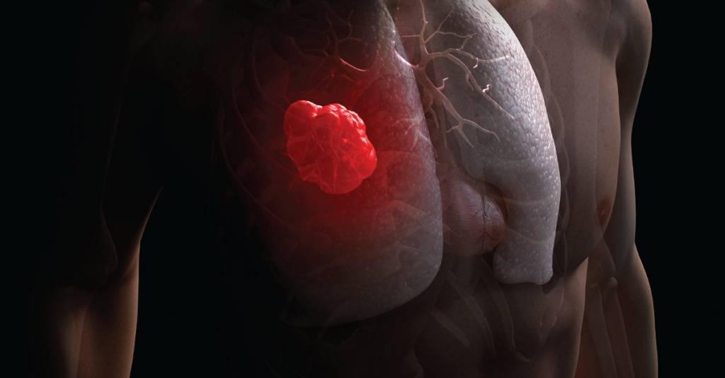 Как выглядит раковая папиллома и что с ней делать?
