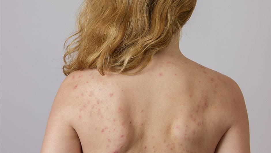 Подростковые прыщи на спине и плечах — чем лечить?