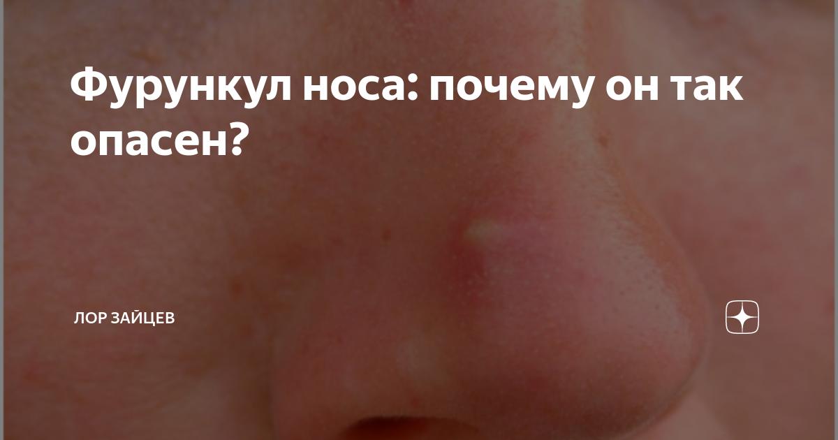 Фурункул на носу: причины, симптомы и особенности лечения