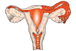 Сальпингоофорит и беременность