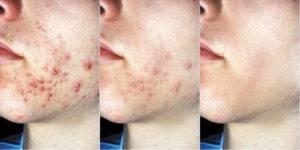 Узловато-кистозные прыщи: симптомы и лечение