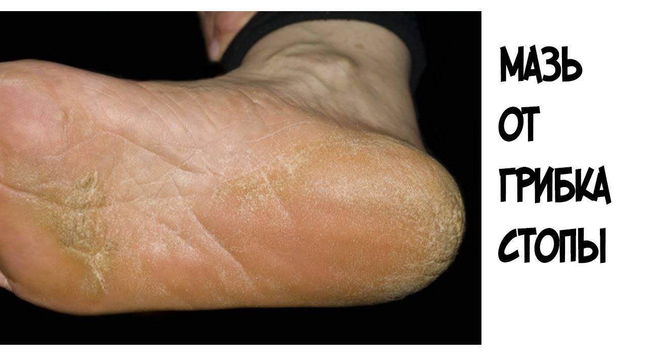 Натоптыши на ступнях – лечение, быстрое избавление в домашних условиях. фото