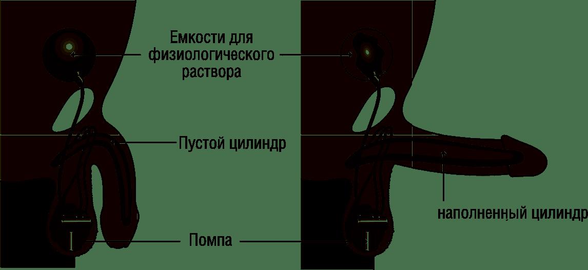 Перелом полового члена