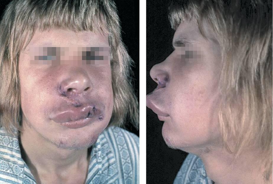 Отек квинке (ангионевротический отек). причины, симптомы, фото, неотложная первая помощь, лечение.