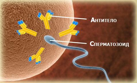 Определение нарушения морфологии спераматозоидов в спермограмме по крюгеру