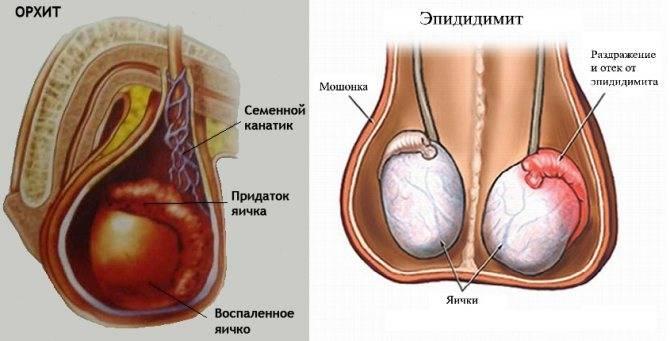 В анализах обнаружен ureaplasma parvum – что это значит и насколько опасно?