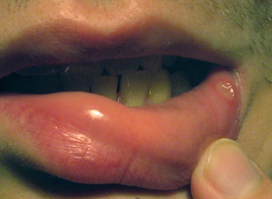 Белые прыщики во рту методы лечения и профилактики